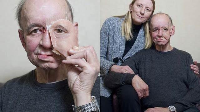 3Dプリンターの義顔 義肢