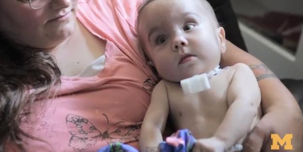 3Dプリンター 医療利用 赤ちゃん