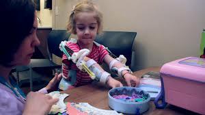 先天性多発性関節拘縮症の少女のための補助器具