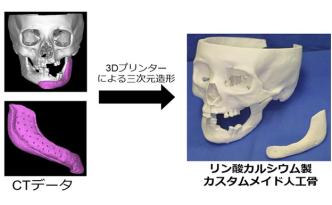 東大の3Dプリンターによる人工骨