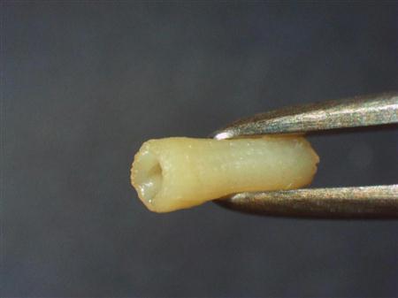 3Dプリンター 動脈