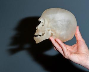 3Dプリンターで作った赤ちゃんの頭蓋骨