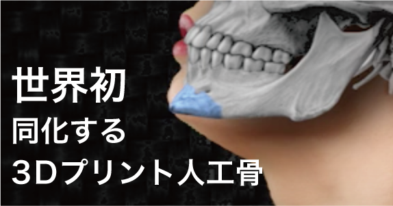 3Dプリント人工骨
