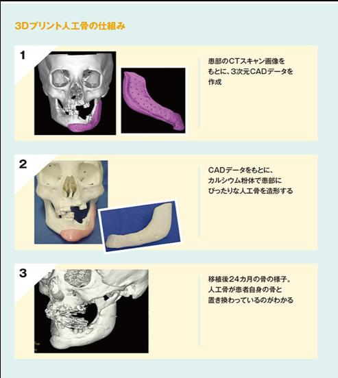 人工骨の移植プロセス