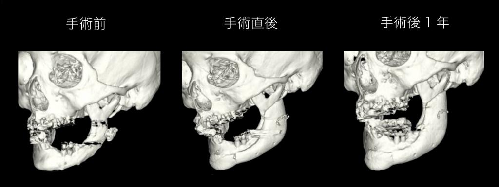 3Dプリンターの人工骨の移植後
