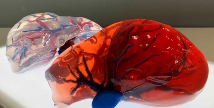 ストラタシスの PolyJet3Dプリンタで造型された血管は、DICOMデータに即し、 さらにニーズに応じて硬さや色を変えて再現することも可能。