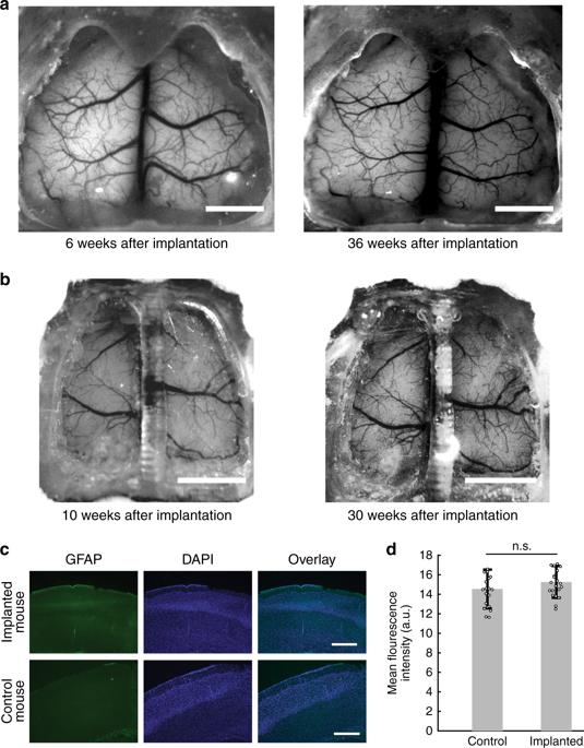 30週間にわたってインプラントを通してマウスの脳を見る  出典:ミネソタ大学
